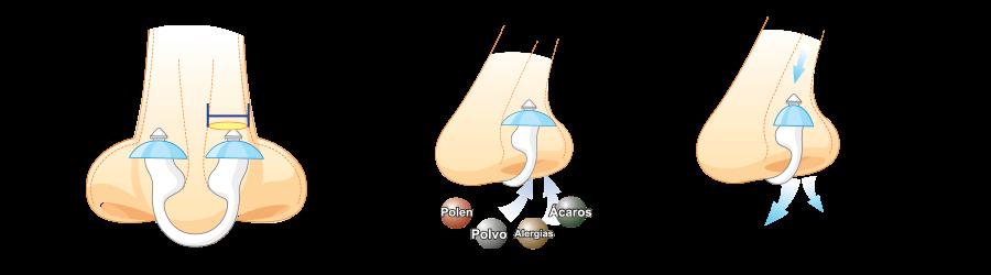 Nosk es un filtro nasal patentado para evitar los síntomas de la alergia